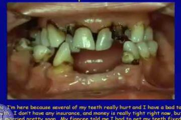 Lecture: Two-implant supported overdenture treatment