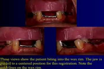 Lecture: Implant-supported dentures