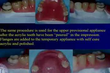 Lecture: Rotational path partial dentures