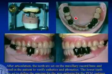 Lecture: Tooth supported overdentures