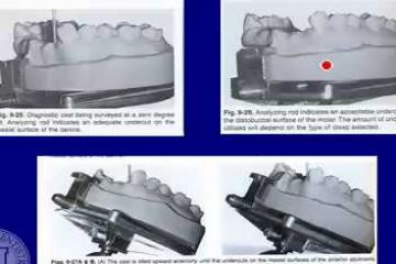 Lecture: Repairing complete and partial dentures